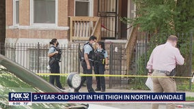 5-year-old boy shot on West Side, in serious condition: officials
