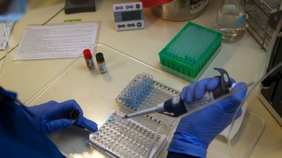 University Of Washington Medicine Tests Blood Of Recovered COVID-19 Patients For Antibodies