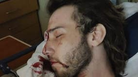 Indiana man who lost eye after being shot with tear gas is now suing police