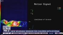 New sensor to help children with eczema stop scratching