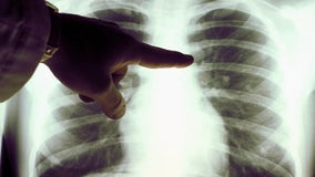 US death rates fall for lung cancer, melanoma, report says
