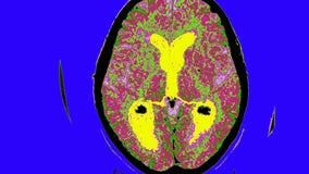 Does new Alzheimer's drug work? It may take 9 years to find out
