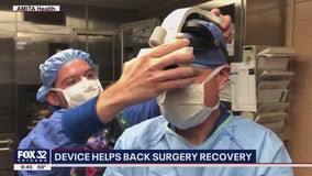 Revolutionary technology allows surgeons to see 3D replica of patients' spines