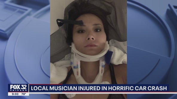 Chicago musician hospitalized with severe injuries after horrific crash in California