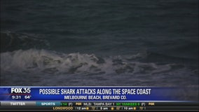 Possible shark attacks along the space coast