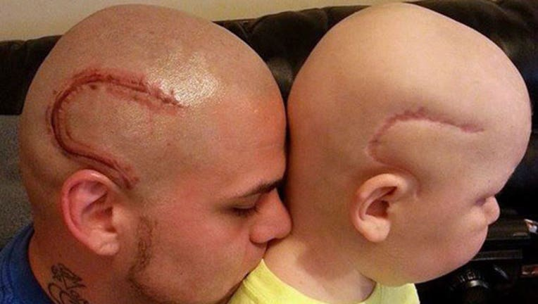 Dad Gets Tattoo to Match Son's Surgery Scar-402970