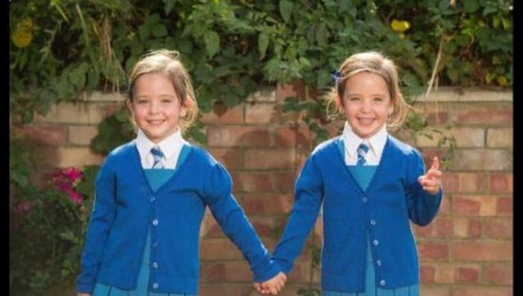 48968ce2-conjoined twins_1472580740182-405538.JPG