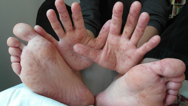 hand foot mouth_1476827767182-404023.jpg
