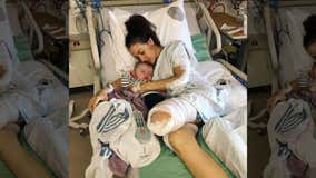 Mom 'grateful' to be alive after losing leg in horrorific motorcycle accident