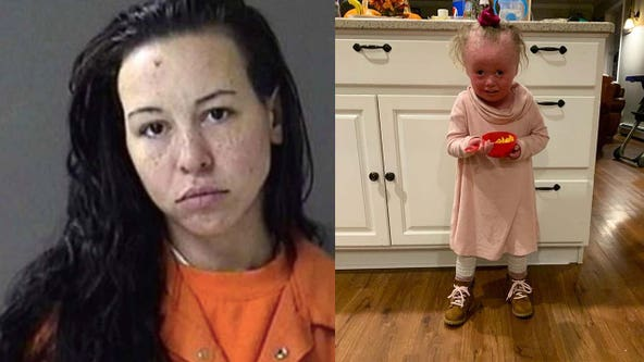 Woman arrested for allegedly harassing toddler with genetic skin disorder
