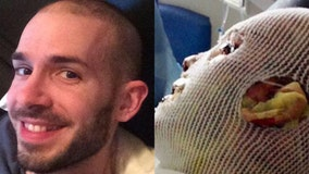 Man burns 'from inside out' in rare reaction to medication: 'Am I going to die?'