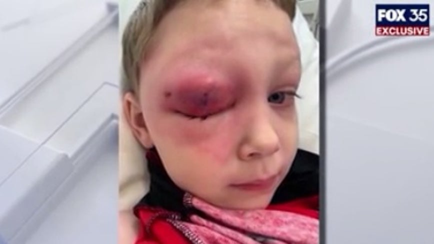 FOX 35 EXCLUSIVE: Central Florida boy with serious eye infection on cruise finally returns home