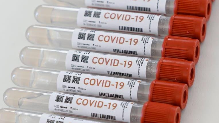 38d9849e-69fcbc65-Coronavirus : Polymerase Chain Reaction test illustration