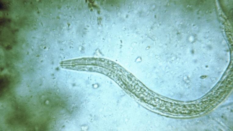hookworm tapeworm
