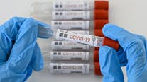 Experts predict COVID-19 numbers may be misleading after the holiday