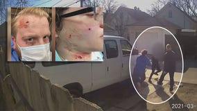 Milwaukee man, pregnant wife shot in 'unprovoked' pellet gun attack