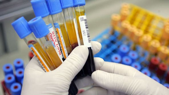 Researchers develop blood test that could help gauge depression, bipolar disorder