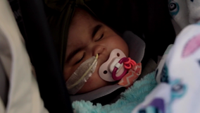 Lawson, girl with extremely rare medical condition, returns to Florida home after treatment