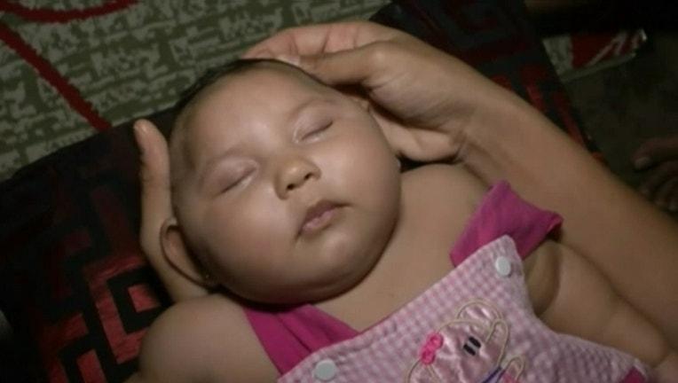 13089d6c-zika birth defects_1460647437338.jpg