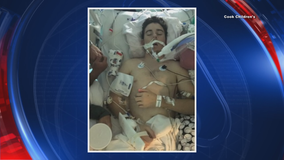 North Texas teen's lung failure linked to vaping