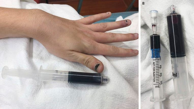 The woman's blood turned a black color after she used medication to treat a toothache.