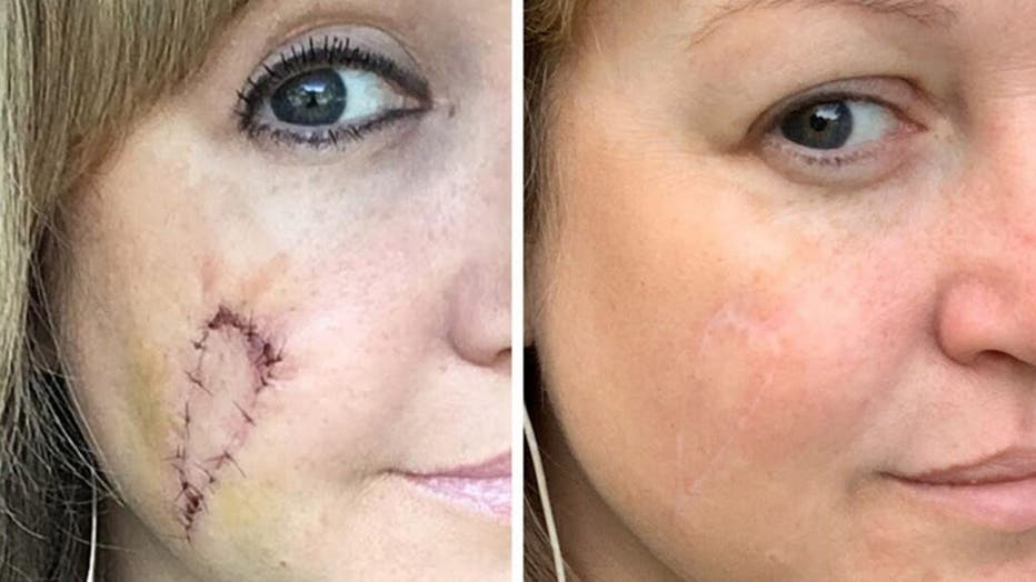 Natalie pictured before and after her scarring healed.