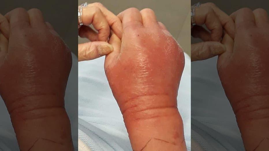 ShirleyHair-arm-after-scracth__SWNS__Fox-News.jpg