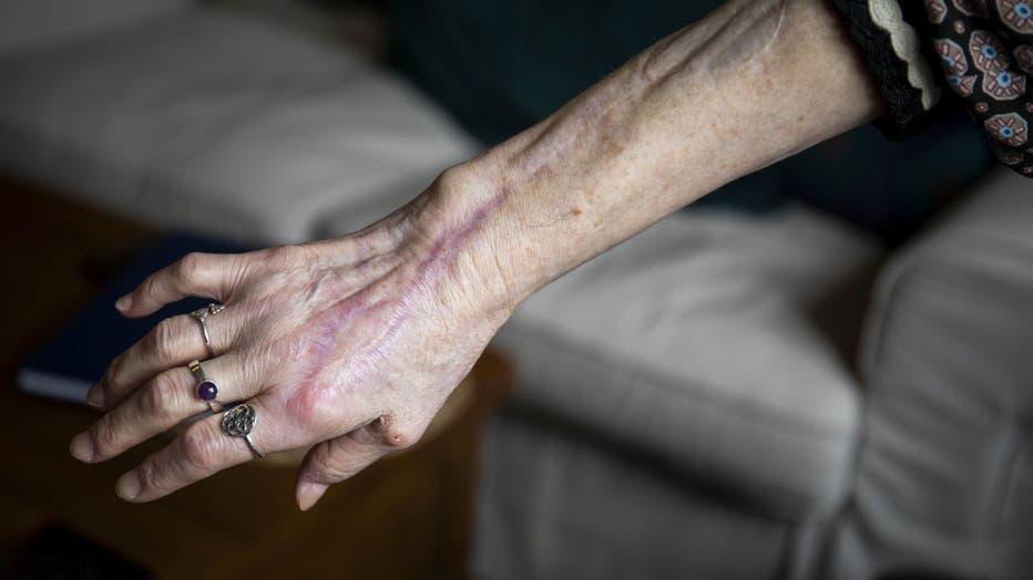 ShirleyHair-healed-arm__SWNS-via-Fox-News.jpg