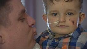 McKinney family's adopted toddler needs lifesaving liver transplant