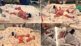 Dallas family welcomes identical quadruplet boys