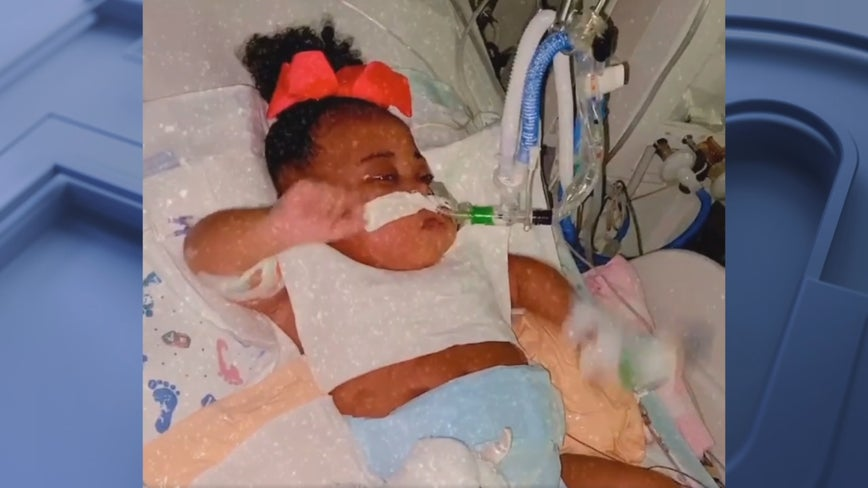 Cook Children's Hospital describes baby Tinslee Lewis' worsening condition