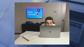 Frisco teen selected for Apple scholarship after creating skin cancer app