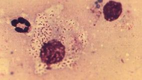 Rare 'flesh eating' STD spreading in United Kingdom