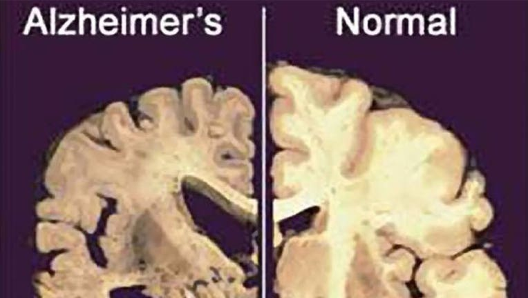 alzheimer's-vs-normal_1460667230946-407693.jpg