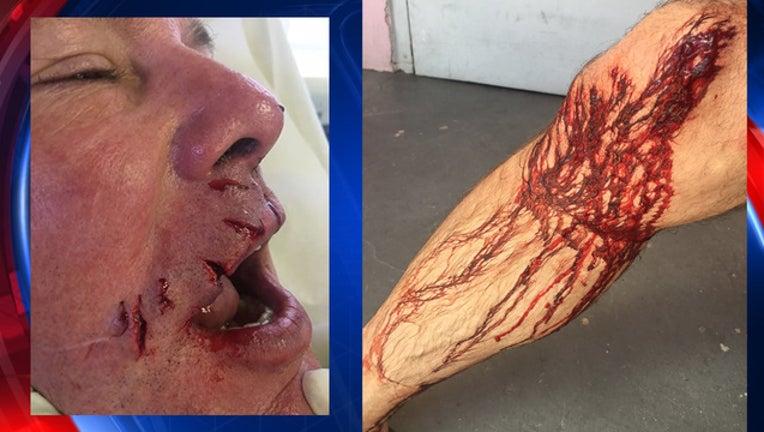 shark attack dentist-409650