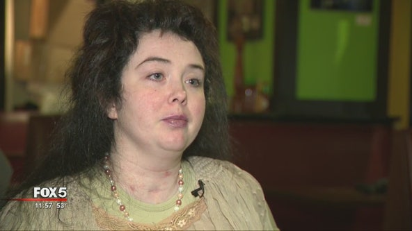 Woman nearly killed by hit-and-run driver celebrates birthday as search continues for suspect