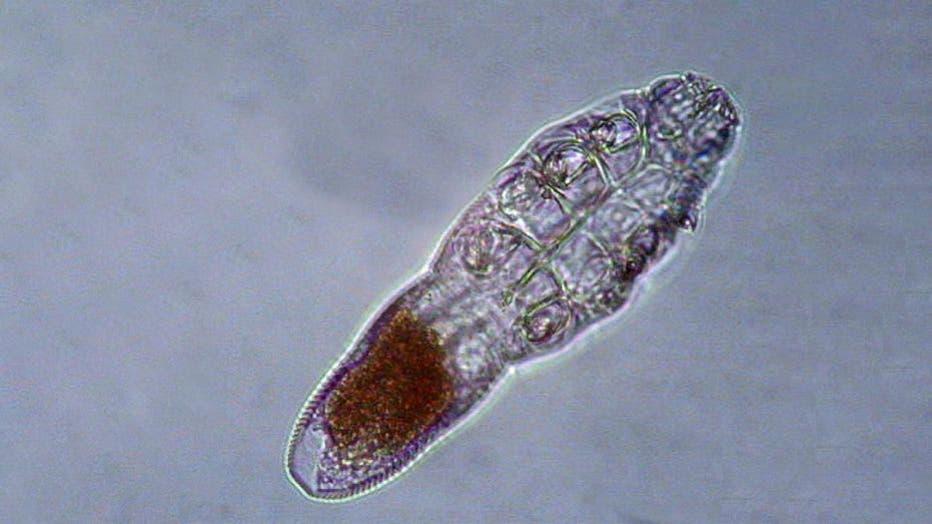 Demodex mite see through a microscope.