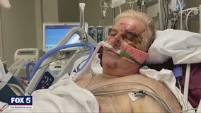 Georgia professor nearly killed in Baltimore hit and run