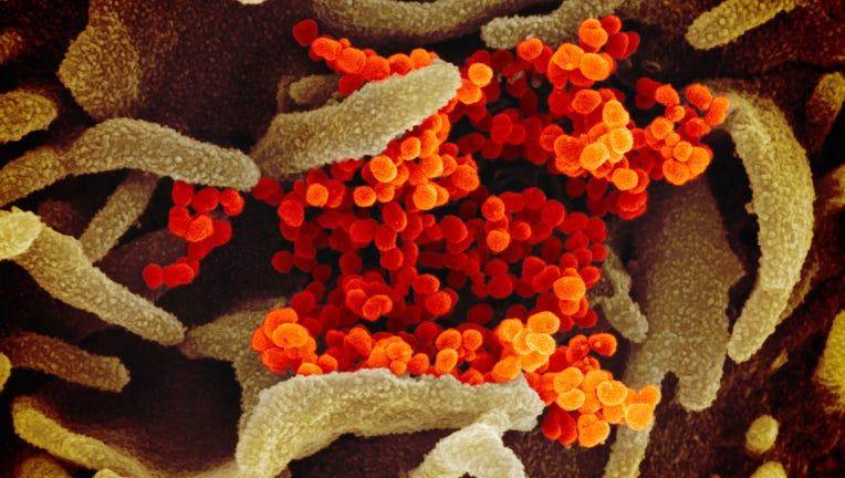 e86112cc-Coronavirus covid-19
