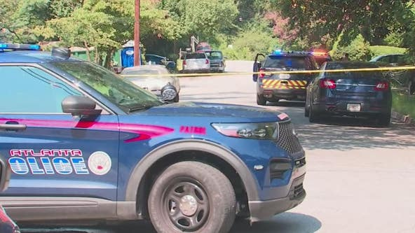 2-year-old Atlanta boy accidentally shot in the head, police say