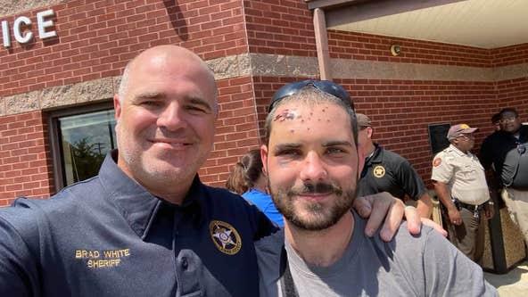 Georgia deputy hit by shotgun blast during 'ambush' released from hospital