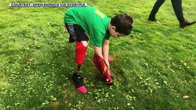 8-year-old amputee receives Iron Man bionic arm