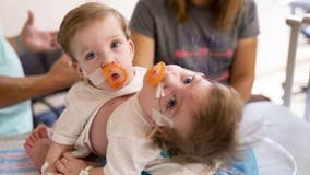 University of Michigan doctors separate 1-year-old conjoined twins in 11-hour surgery