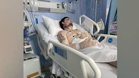 Man stuck in overseas hospital as Georgia ICU's reach capacity