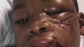 Boy suffers facial injuries in attack at Atlanta dog park