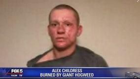 Giant hogweed sends Virginia teen to hospital, burn unit