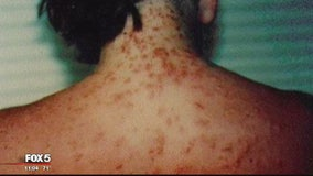 Sea lice being reported in Ocean City, officials say
