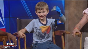 Maryland boy receives new 3D-printed prosthetic arm made at Home Depot