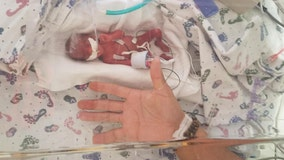 'Remarkable': Tiny baby born weighing just 13 ounces wows doctors with progress