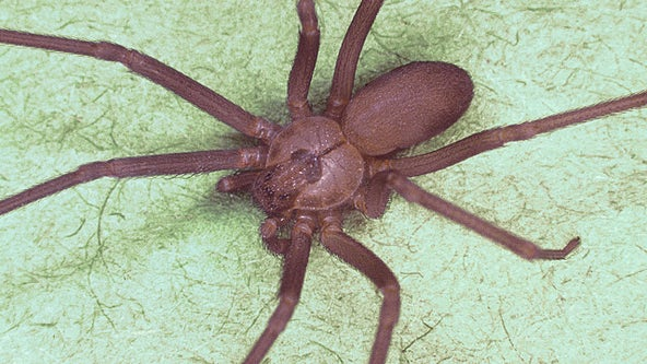 Woman thought she had water in her ear, doctors find brown recluse spider